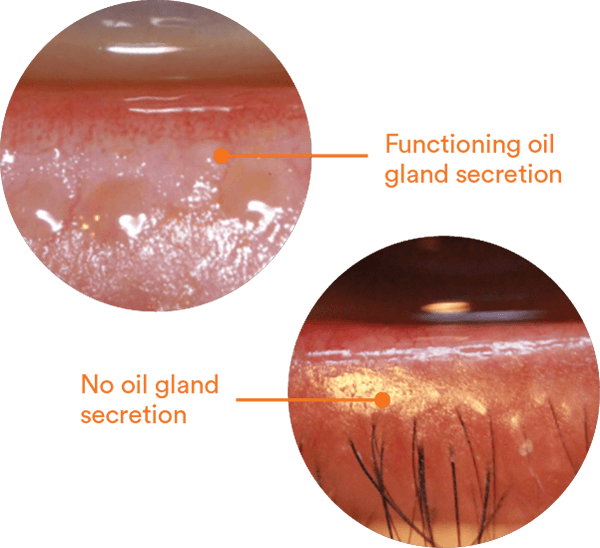 Meibomian Gland Dysfunction (MGD)
